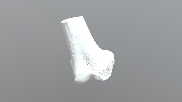 Mosaicplasty 3D Model