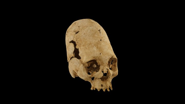Artificialy deformed skull - Dully - 5th c. AD 3D Model