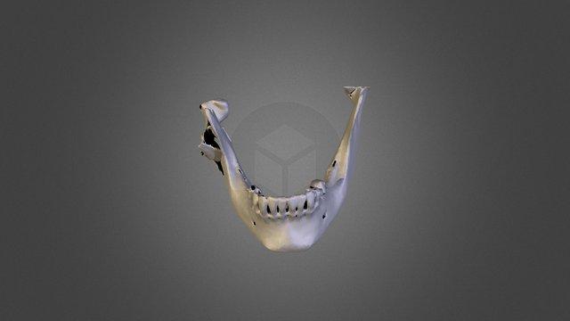 Complex Mandible Fracture 3D Model