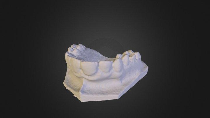 Teeth scan with Robocular Mini 3D Model