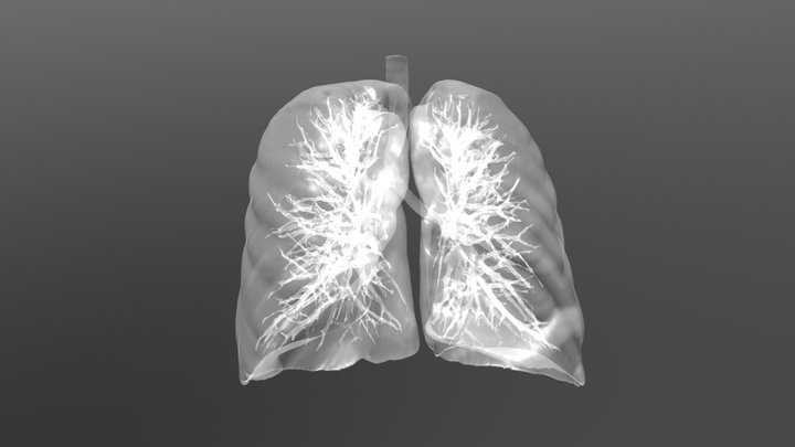 Lung carcinoma 3D Model