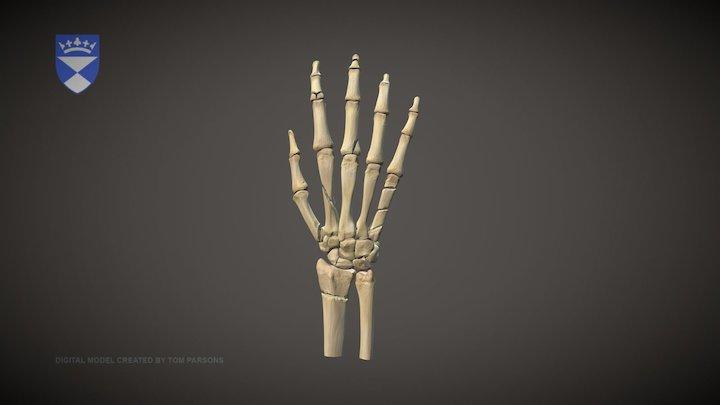 Common Hand Fractures Model 3D Model