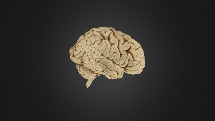 Brain With Second Section 3D Model