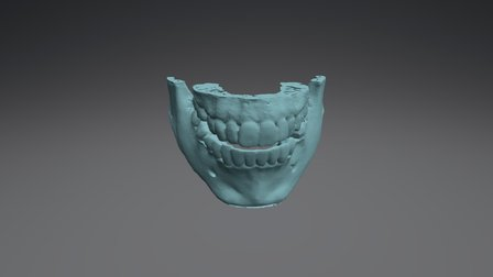 RB Case 3D Model