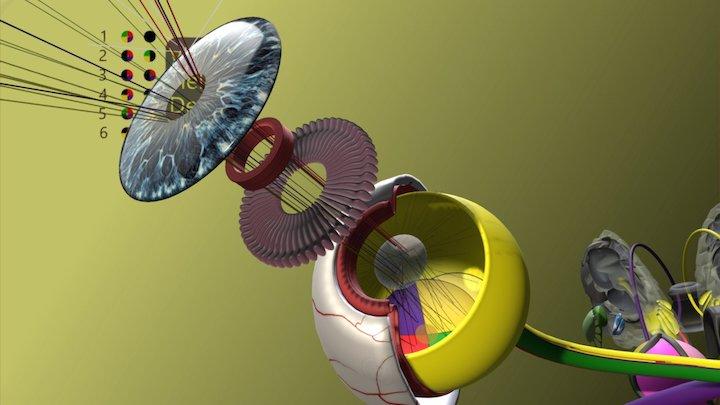Visual Field Defects 3D Model