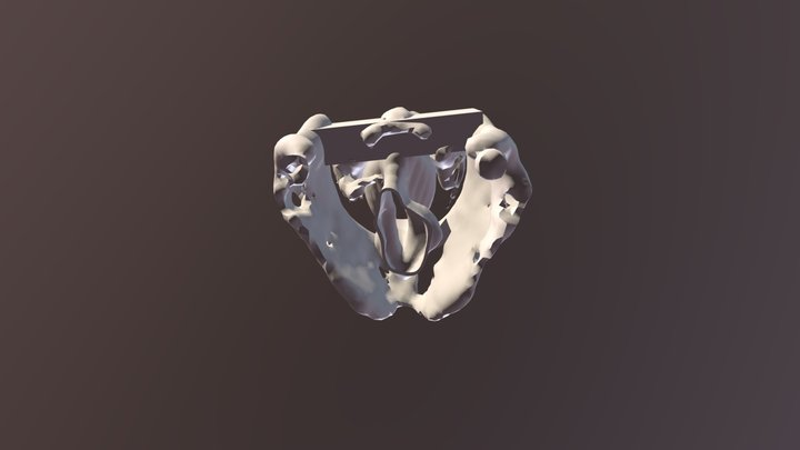 Left vocal cord palsy with thyroplasty prepare 3D Model