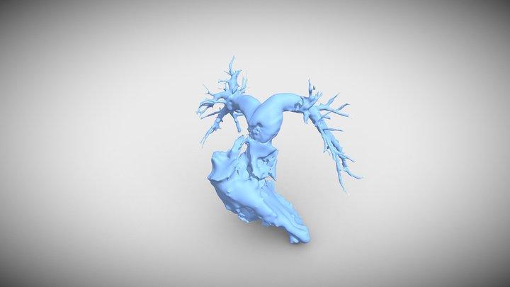 RV-Pulm 3D Model