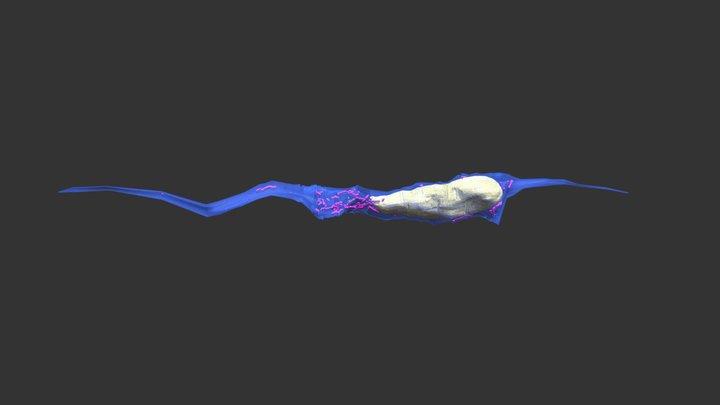 Somal translocation 3D Model