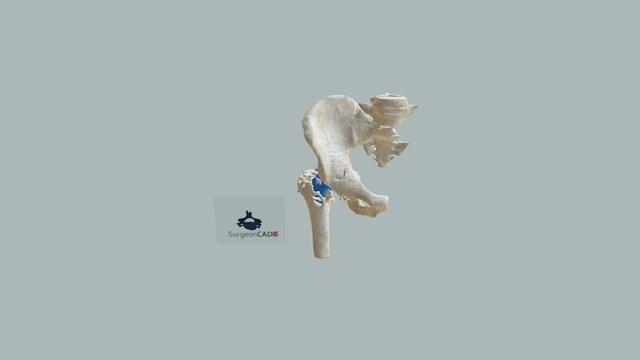 Caso 2-aflojamiento De Prótesis 3D Model