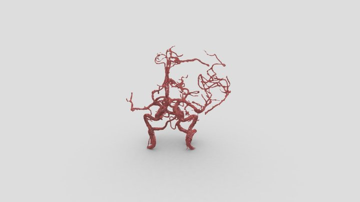 Internal Carotid Artery - Ophtalmic seg Aneurysm 3D Model