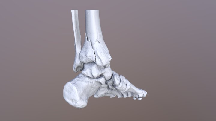Closed comminuted distal tibia fracture VOKA.IO 3D Model