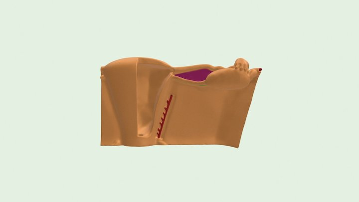 Broad Ligament of the Uterus 3D Model