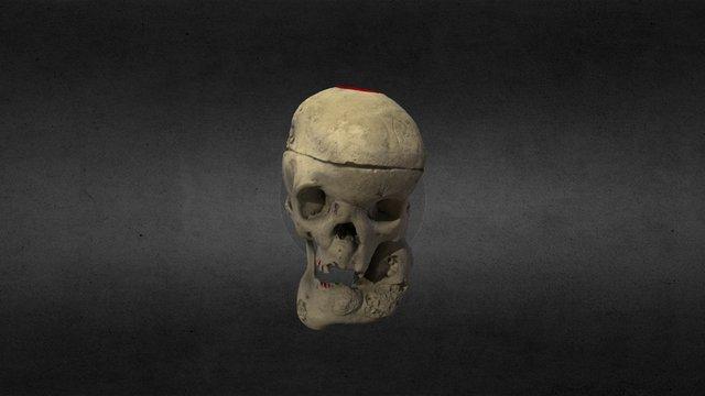 Acromegalic Skull 3D Model