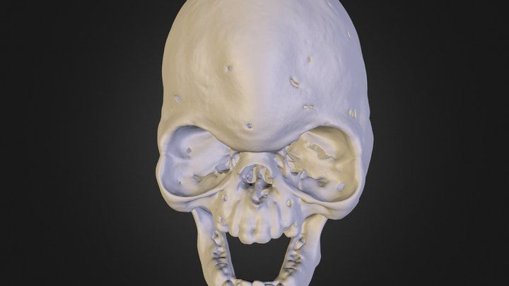 5 year old Aperts Skull 3D Model